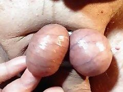 Needles in my Balls